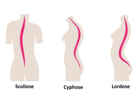 Schéma de la lordose cervicale
