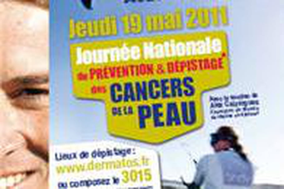 Jeudi 19, une Journée pour dépister les cancers de la peau