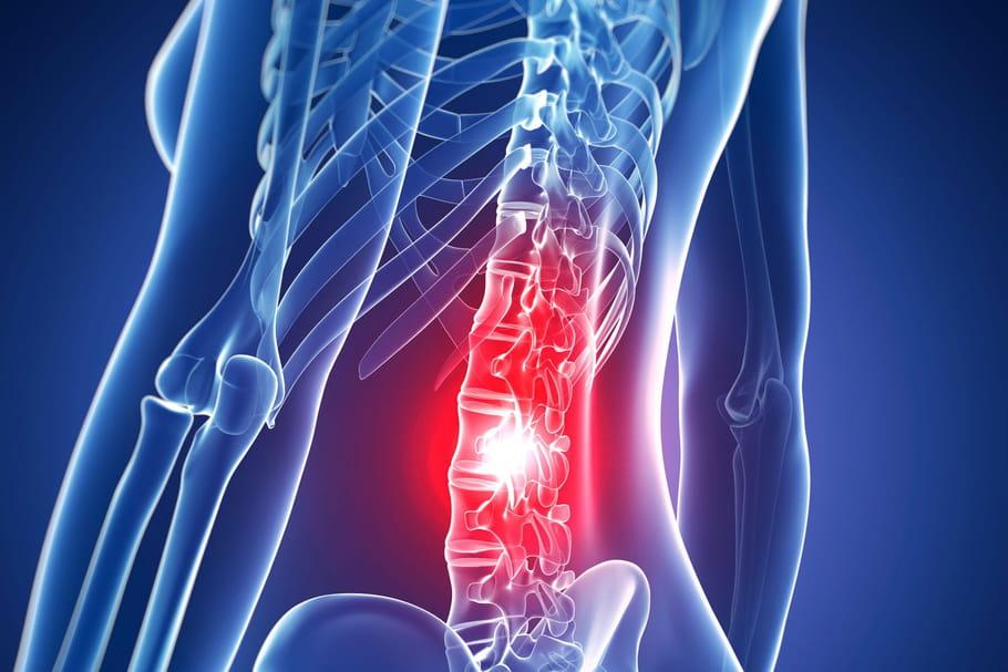 Ponction lombaire: pourquoi, techniques, douleur