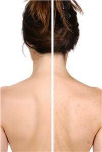 lorsque l'acné est plus tardive ou plus sévère, on observe des boutons sur le