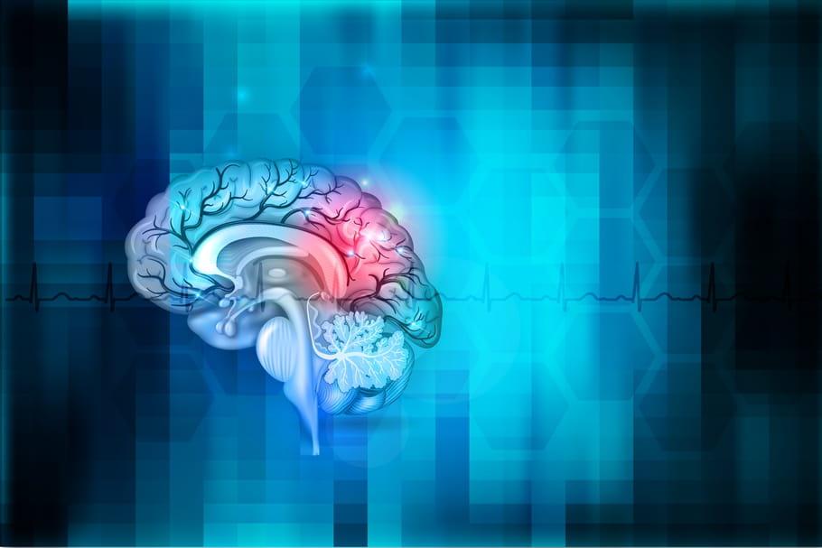 Métastases au cerveau: signes, traitement, espérance de vie