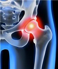 la pose d'une prothèse de hanche s'impose souvent après plusieurs années