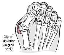 la seule solution est chirurgicale : il faut remettre l'os dans l'axe normal.