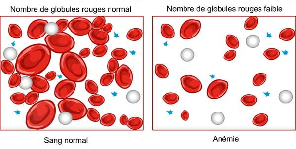 Maladie anémie taux globules rouges
