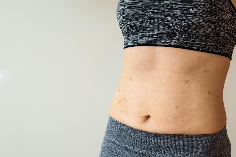 Lichen plan: cutané, buccal, pilaire, quels traitements?