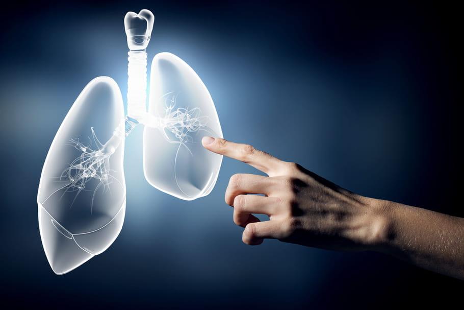 7symptômes d'alerte du cancer du poumon chez la femme
