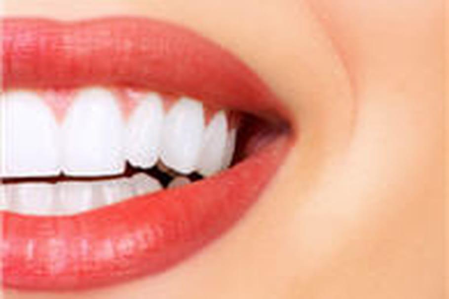 Blanchiment dentaire: oui, mais chez le dentiste!