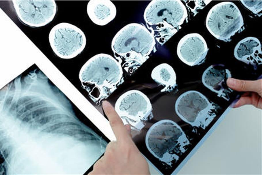 Alzheimer, Parkinson, SEP... Que contient le nouveau plan?