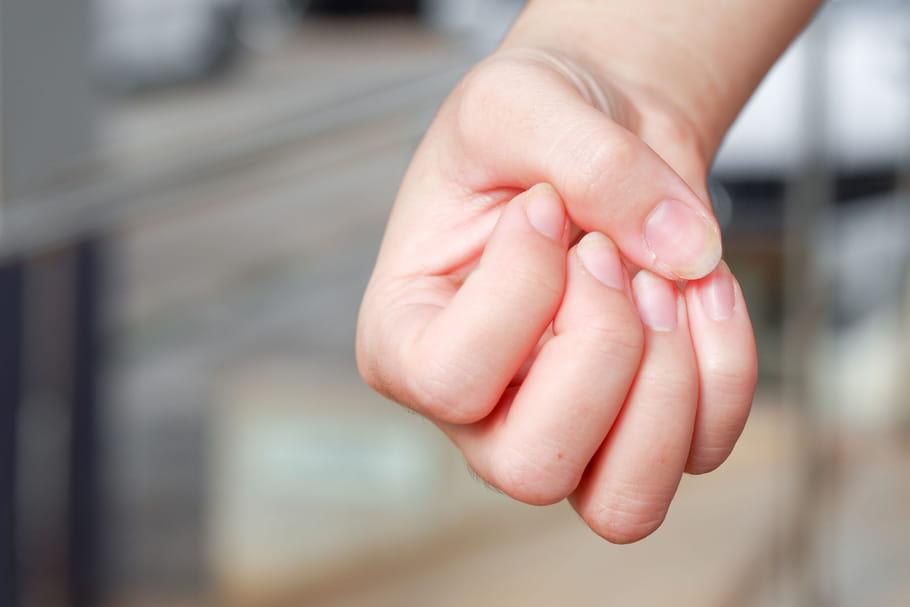 Psoriasis aux ongles: traitement, vernis, est-ce contagieux?