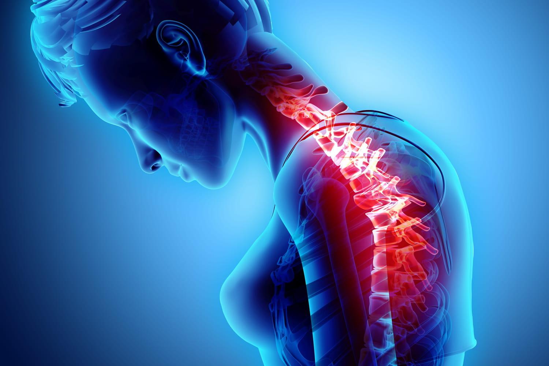 Hernie intra spongieuse: causes, traitement, est-ce opérable?
