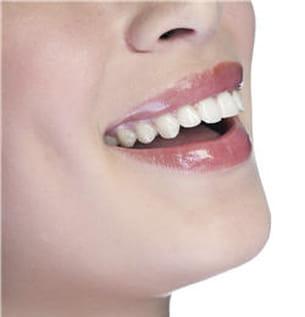 si vous trouvez vos dents foncées, parlez-en à votre dentiste. il existe