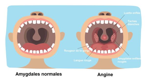 Schéma des symptômes d'une angine