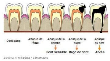 Comment Soigner Une Carie Sans Dentiste