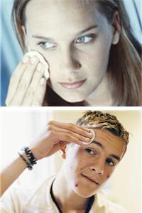 la testostérone peut être en cause dans l'apparition de l'acné, aussi bien chez