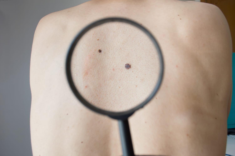 Les taches suspectes d'un cancer de la peau en photos