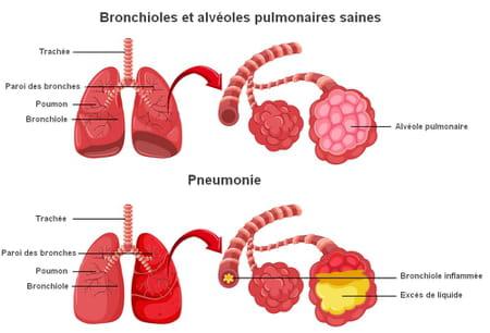 pneumonie image