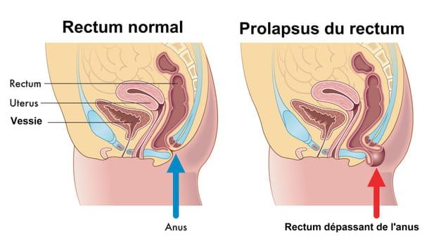 Prolapsus du rectum schéma