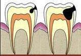 une fois l'émail détruit, l'attaque acide progresse jusqu'à la pulpe de la dent.