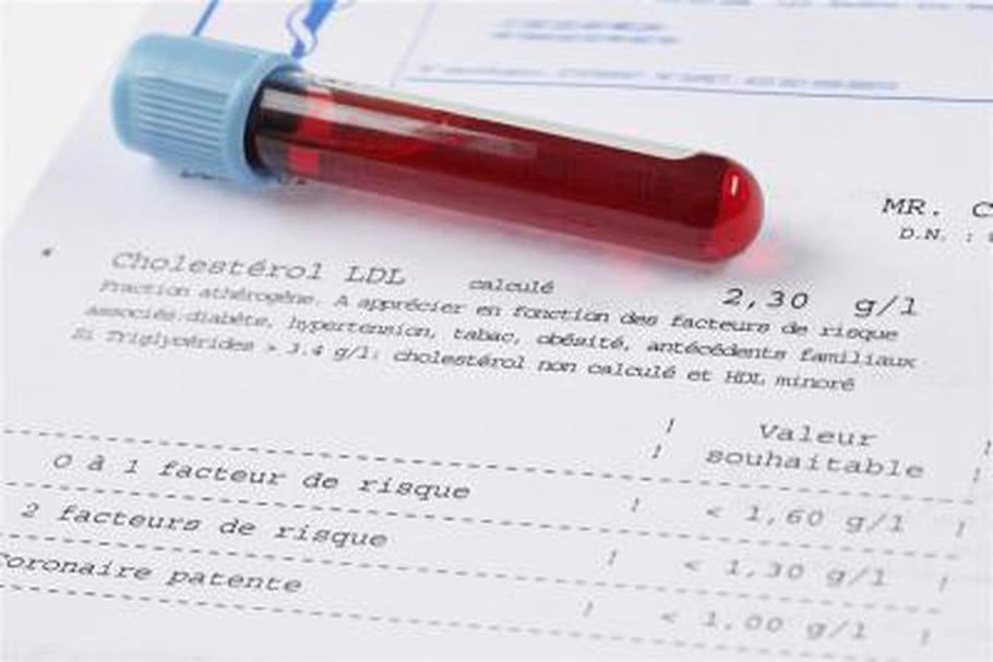 Dosage sanguin de la vitamine B9