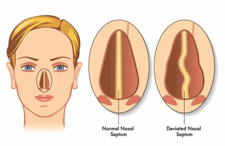 schéma déviation de la cloison nasale