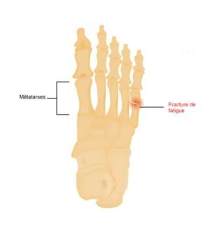 Fracture de fatigue du pied (métatarse)