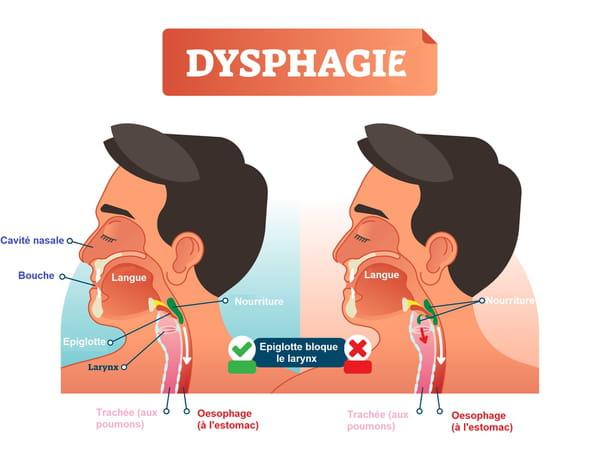 Dysphagie schéma