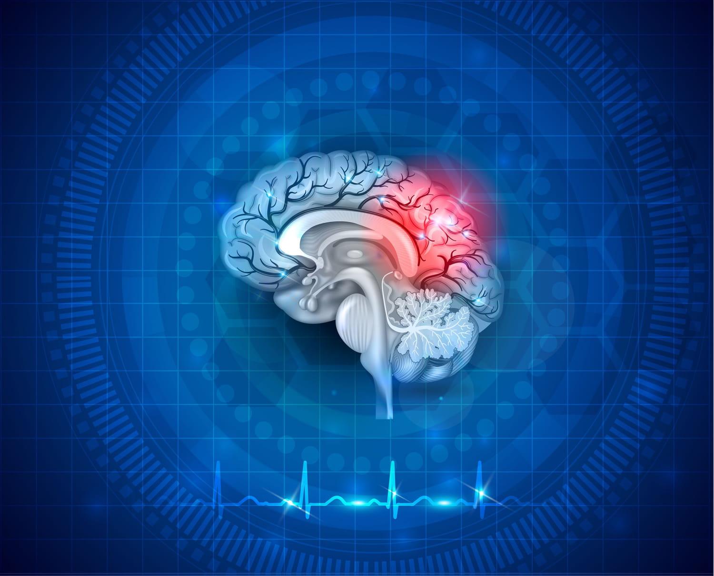 Hémorragie cérébrale: symptômes, cause, séquelles, opération