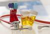 Leucocytes et hématies dans les urines: quand s'inquiéter?