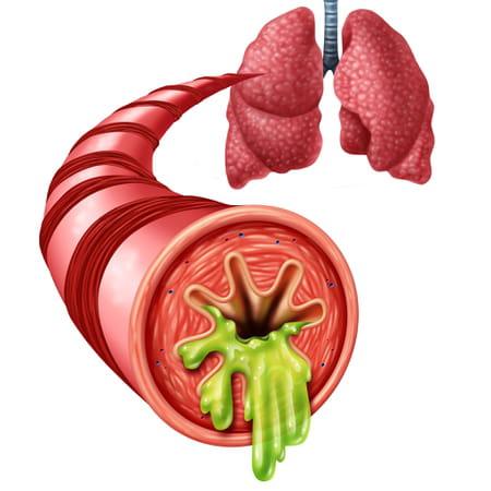 Bronchite aiguë ou chronique : comment la soigner ?