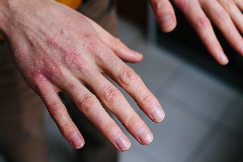Mains gercées: causes, froid, crème, que faire?