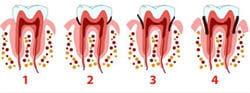 la plaque dentaire s'accumule et forme du tartre qui va se loger dans une poche