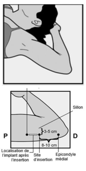 pose implant contraceptif bras
