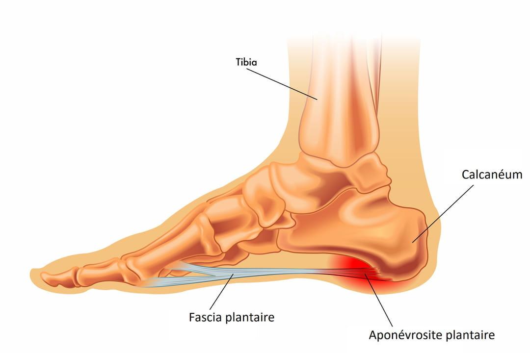 inflammation tendon sous le pied