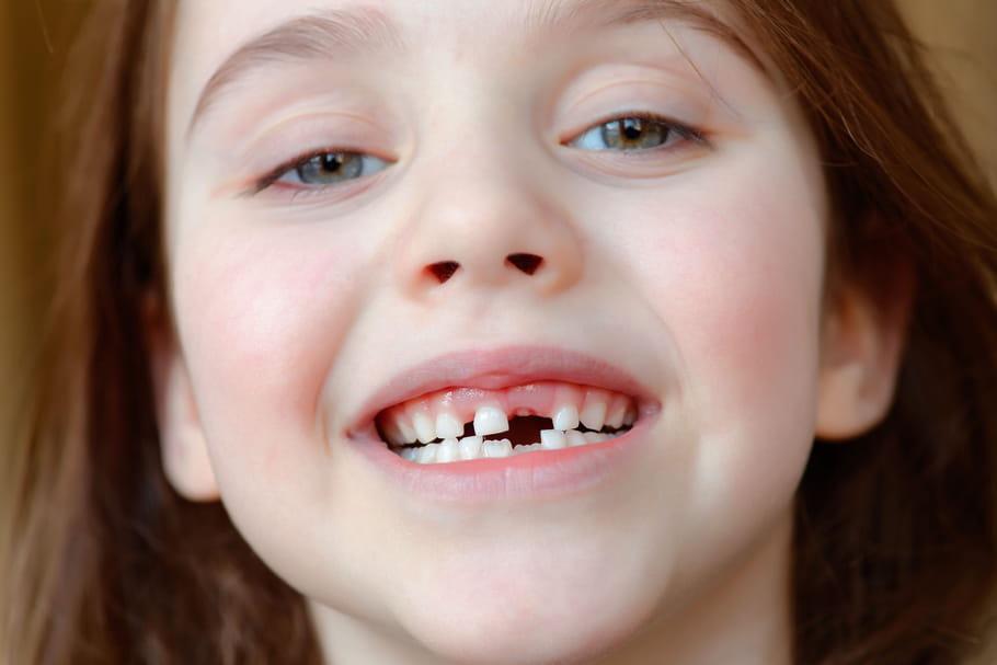 Dents de lait: apparition, nombre, âge de la perte
