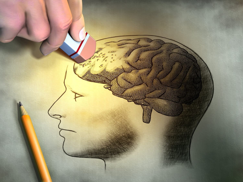 Maladie d'Alzheimer: causes, définition, symptômes, espérance de vie