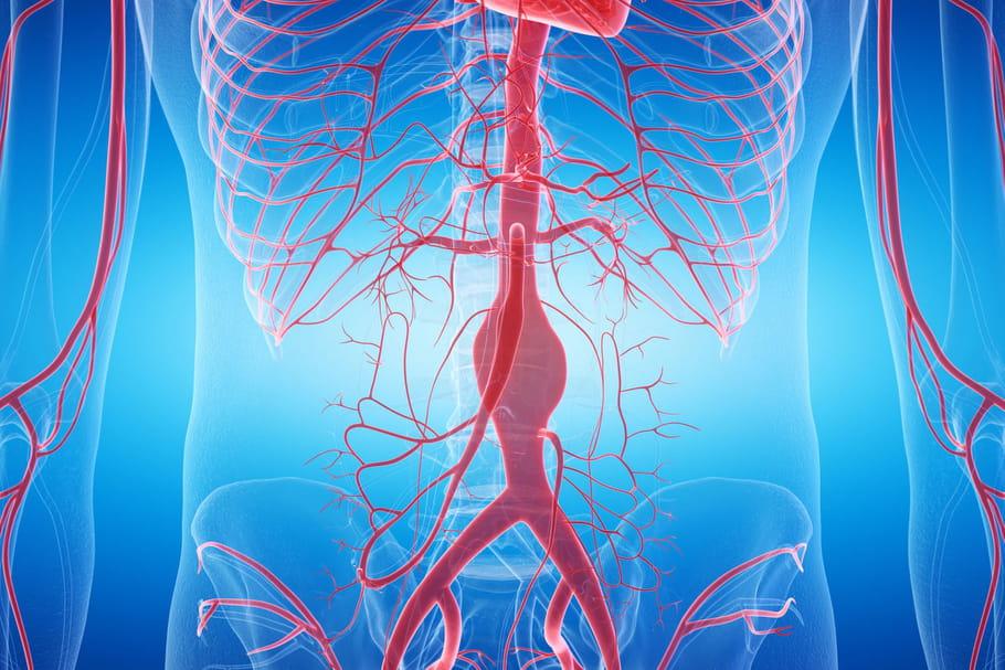 Anévrisme: mycotique, ventriculaire, aortique, qu'est-ce que c'est?