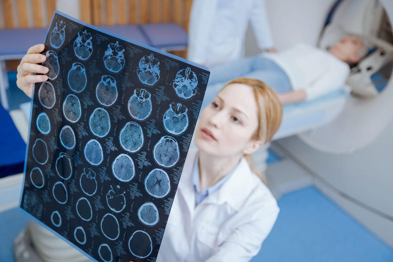 Thrombose cérébrale: c'est quoi, symptômes, traitement