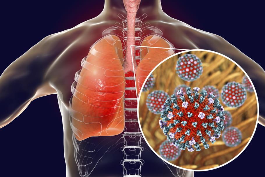 Grippe de Hong Kong en France: taux de mortalité, lien avec le Covid?