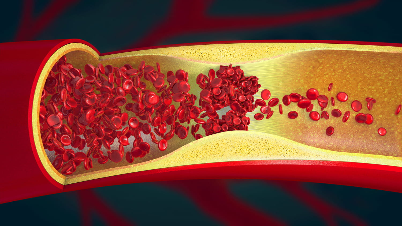 Thrombose artérielle: signes, causes, traitements