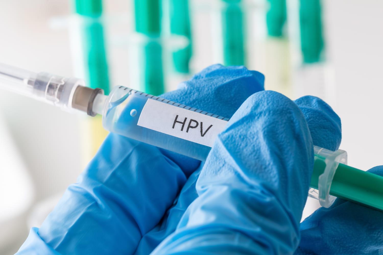 hpv que es virus