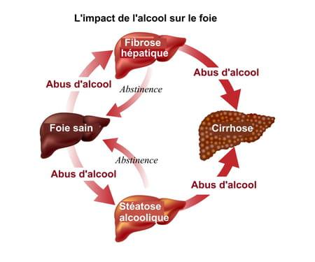 Conséquences de l'alcool sur le foie