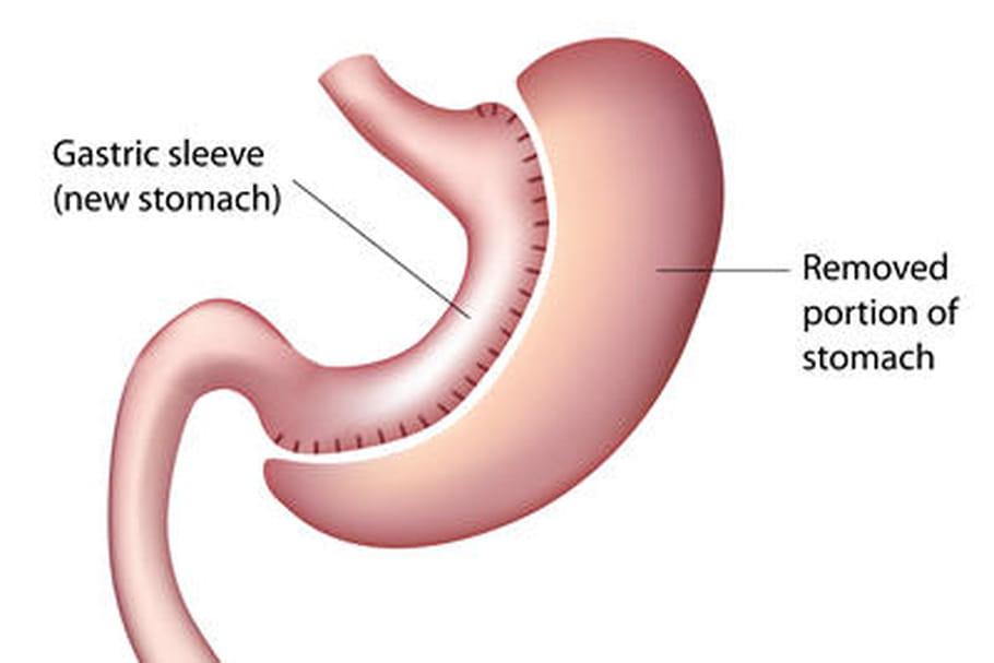 Sleeve gastrique : pour qui ? pour quels résultats ?