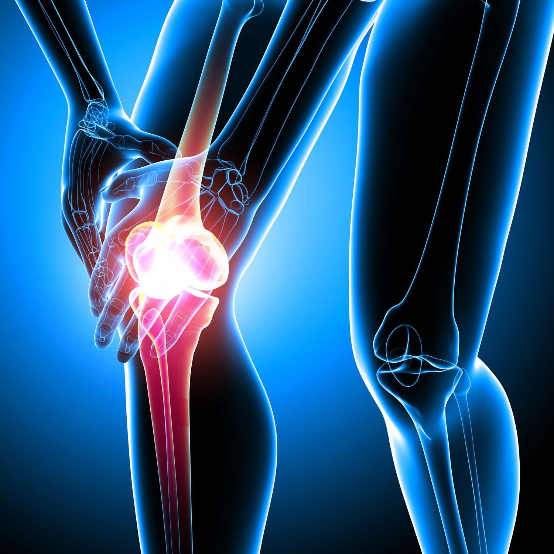 Ostéonécrose: causes, traitements, c'est quoi?