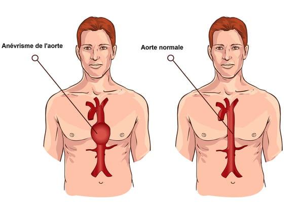 Schéma anévrisme de l'aorte