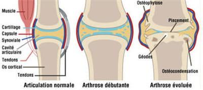evolution d'une articulation arthrosique au fil des ans.