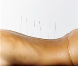 l'acupuncture aide à soulager des maux très variés, des troubles digestifs aux