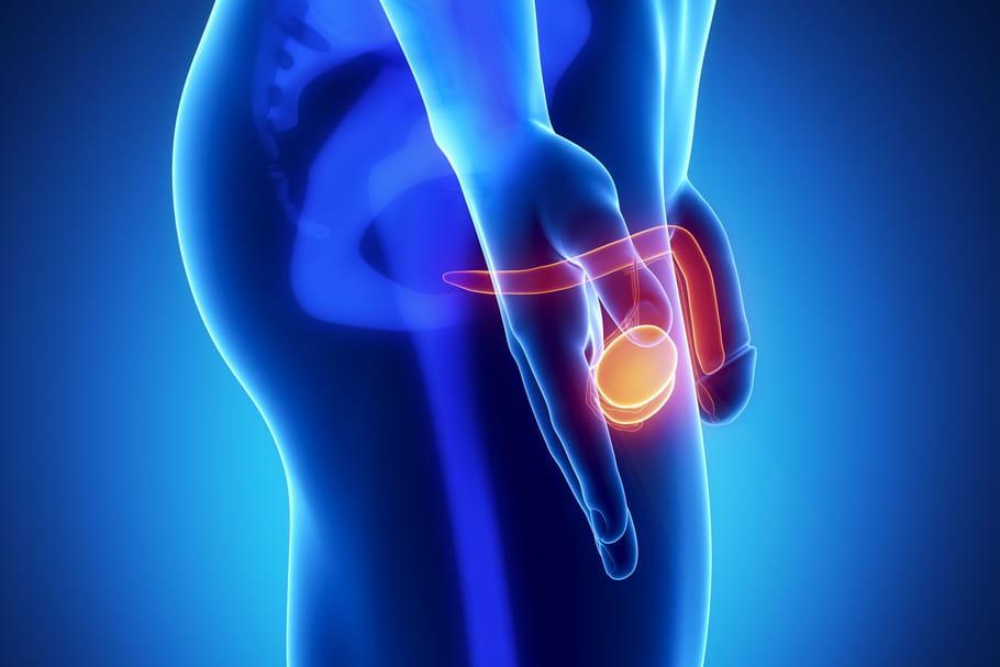 Gonflement Des Testicules Causes Douleur Quels Traitements