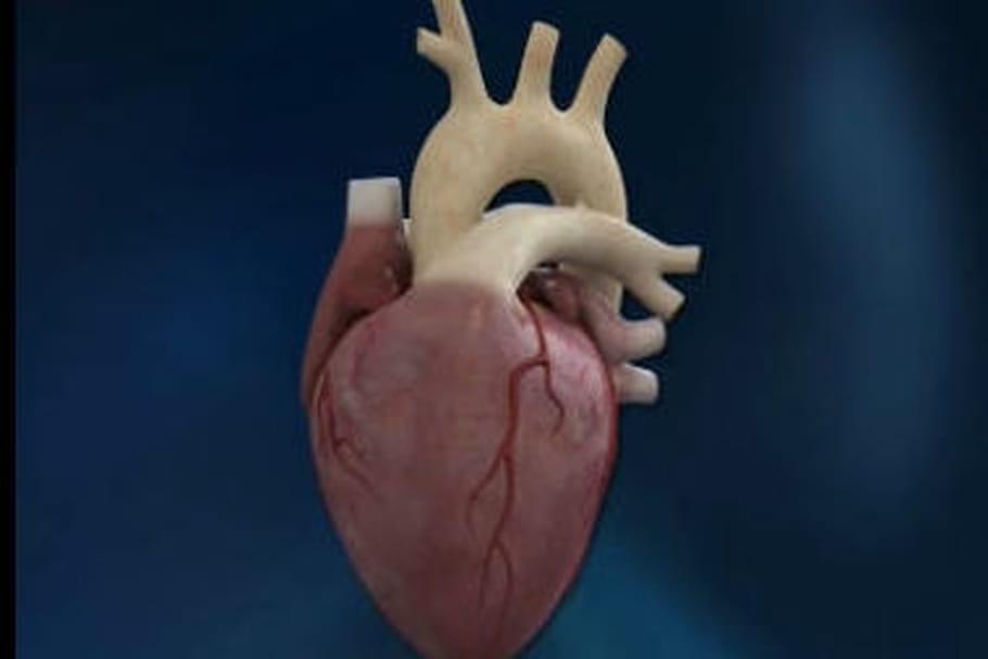 Cœur artificiel Carmat : le 2e patient greffé est décédé