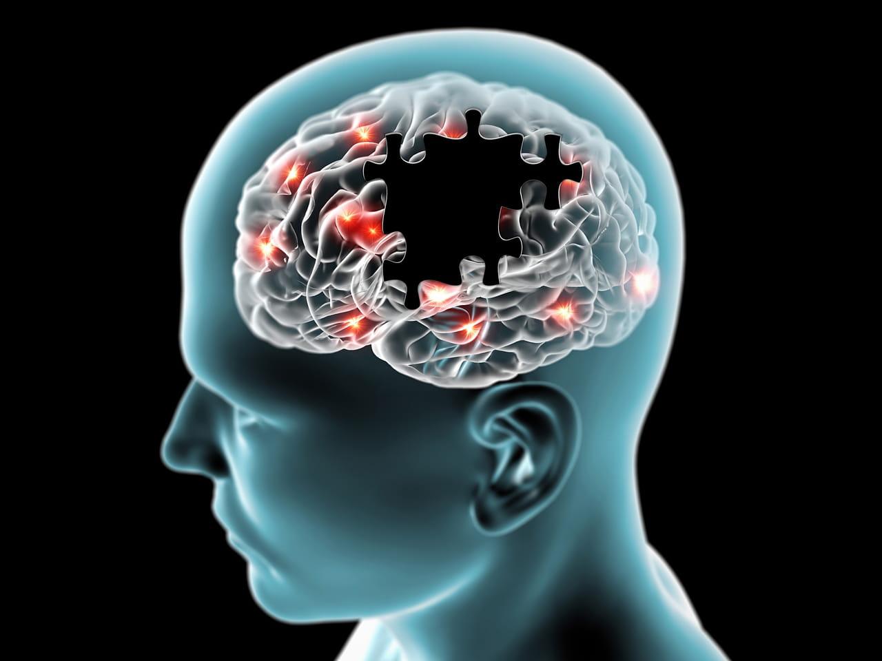 Maladie de Parkinson : quels sont les premiers symptômes ?