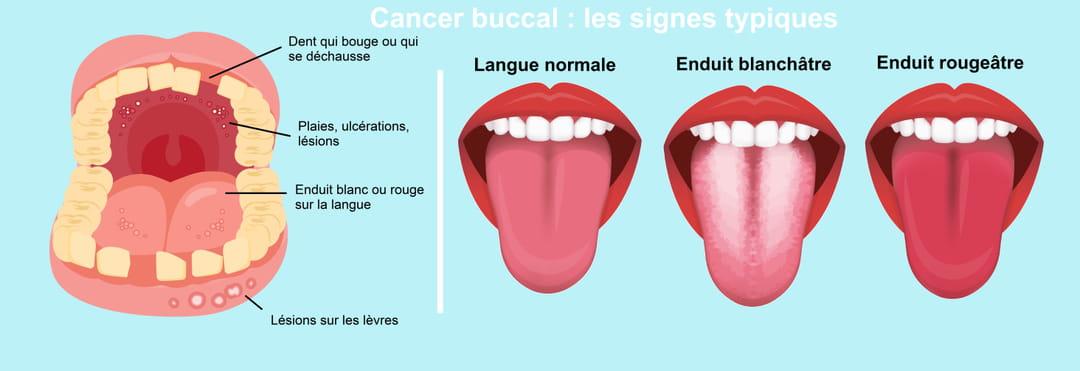 Signes typiques d'un cancer de la bouche